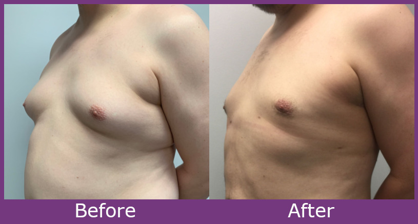 Before and after image of gynecomastia surgery results